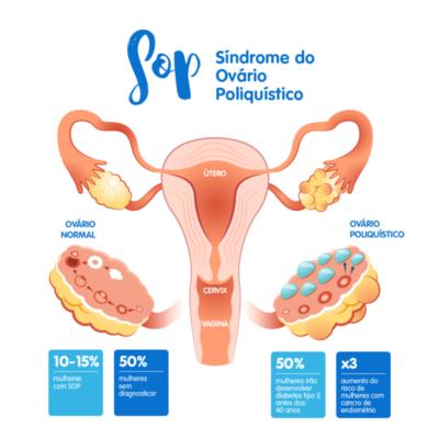 Sindrome do ovário poliquistico