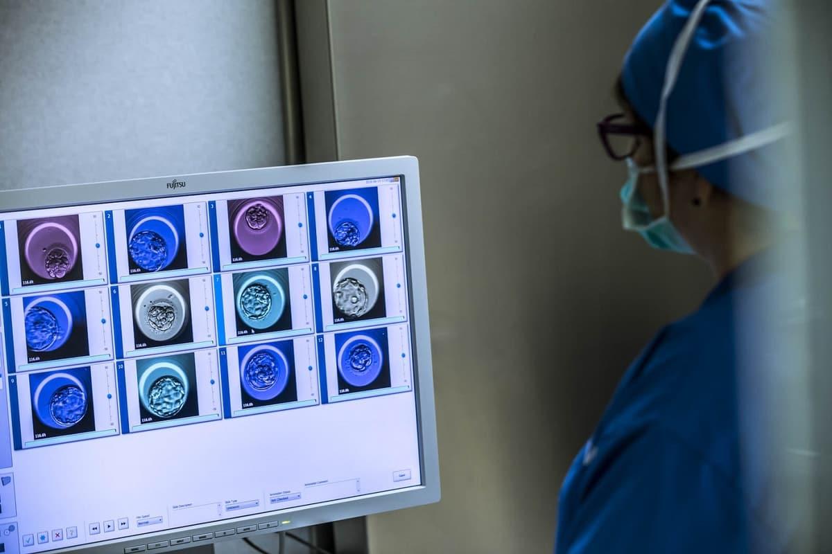 Estudo IVI analisa o desenvolvimento de embriões aneuploides pós-implantação